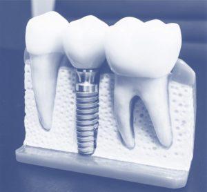 Festigkeitsnachweise von Dentalimplantaten per FEM